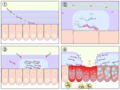 H pylori ulcer diagram.png