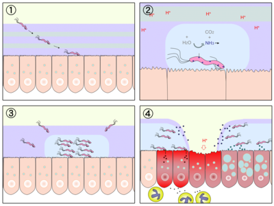 Infekce Helicobacter pylori vede k narušení protektivní hlenové bariéry a tím vytváří teren pro vznik ulcerací