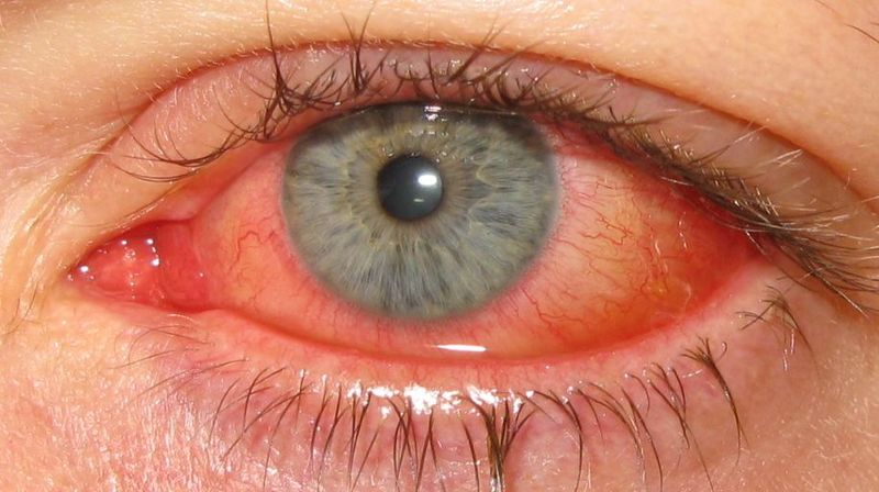 Infection In Eyes Of Dog