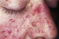Kožní léze v obličeji