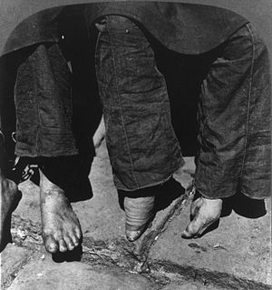 Foot binding - A comparison between a woman with normal feet (left) and a woman with bound feet in 1902