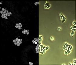 Microscopy - Wikipedia