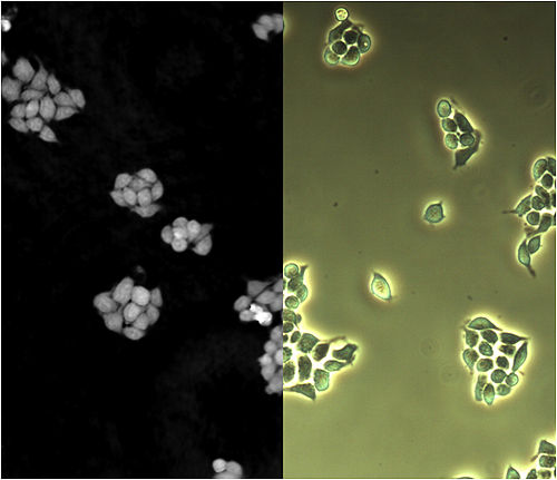 Human cells imaged by DHM phase shift (left) and phase contrast microscopy (right). Phase-Phase Contrast.jpg