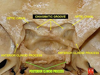 Posterior clinoid processes - Posterior clinoid process