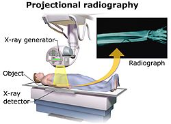 X Ray Technician Equipment X-ray generator...