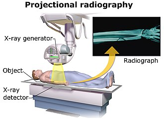 Projectional radiography - Acquisition of projectional radiography, with an X-ray generator and a detector.