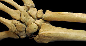 Short bone - Carpus (bones of wrist) is classified as short bone.