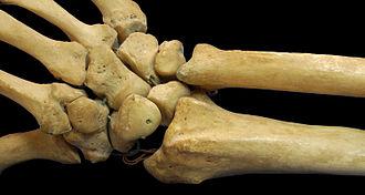 Short bone - Carpus (bones of wrist) is classified as short bone.