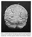 Site of lesion in various forms of aphasia Wellcome L0023669.jpg