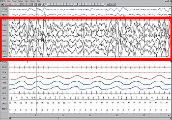 Stage N3 sleep; EEG highlighted by red box. Th...