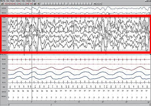 This is a screen shot of a patient during Slow Wave Sleep (stage 3 ...