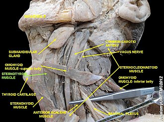 Sternothyroid muscle - Image: Slide 3c