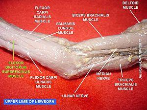 Flexor digitorum superficialis muscle - Image: Slide 9r