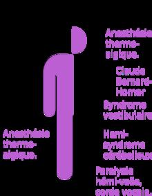 Syndrome de wallenberg wikip dia - Coup de chaleur wikipedia ...