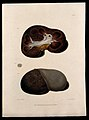 Three sections of diseased kidney. Coloured mezzotint by W. Wellcome V0009748ER.jpg