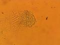 Слизистая оболочка рта под микроскопом.png