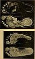 Atlas und Grundriss der Unfallheilkunde sowie der Nachkrankheiten der Unfallverletzungen - mit 40 farbigen Tafeln, nach originalquarellen des malers Johann Fink und 141 schwarzen Abbildungen (1900) (14754215121).jpg