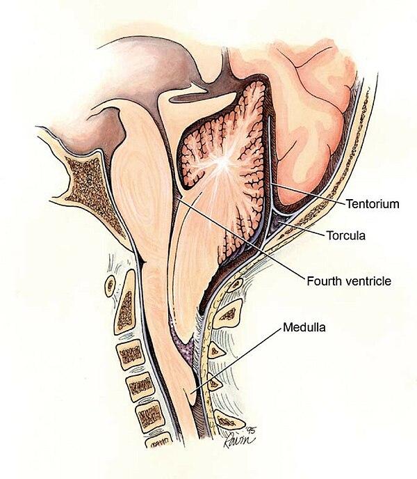 Hipertensión intracraneal y chiari
