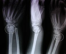 Colles fracture.JPG