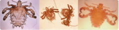 Crab Lice CDC.png