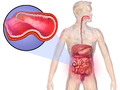 Crohn's Disease.png