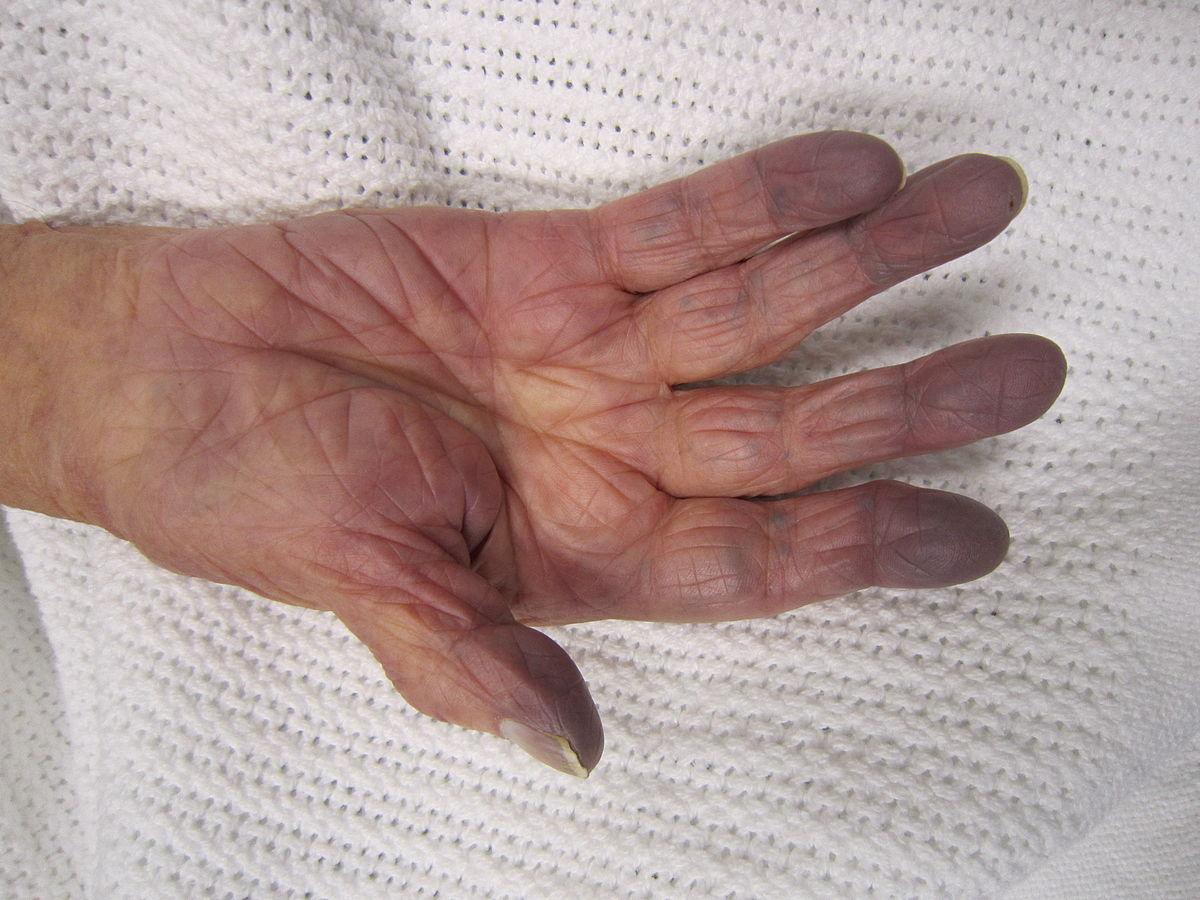 blå naglar symptom