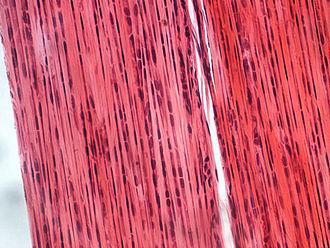 Nanofiber - Collagen fibers in a cross-sectional area of dense connective tissue.