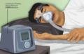 Depiction of a Sleep Apnea patient using a CPAP machine.png