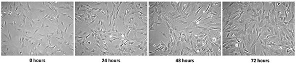 Four micrographs, showing changes in cells over 72 hours