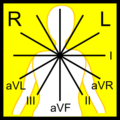 ECG leads - named (no arrows).png