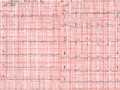 Electrocardiogram 12derivations male 23yo Japanese.png