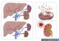 Examples of Signs and Symptoms of Kidney Ischemia.png