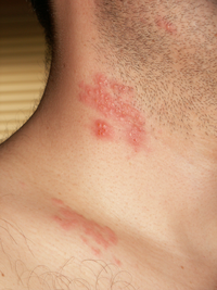 Herpes zoster blisters on the neck and shoulder.