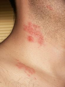 herpes sur le corps