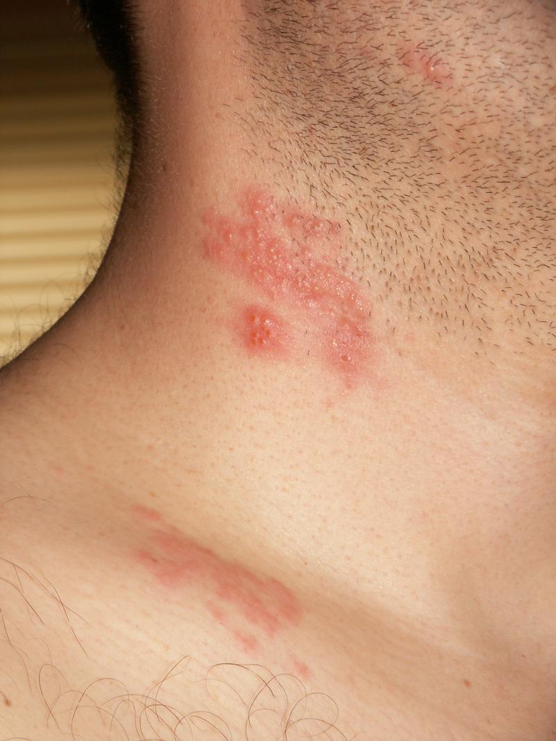 Herpes zoster neck - زونا چیست