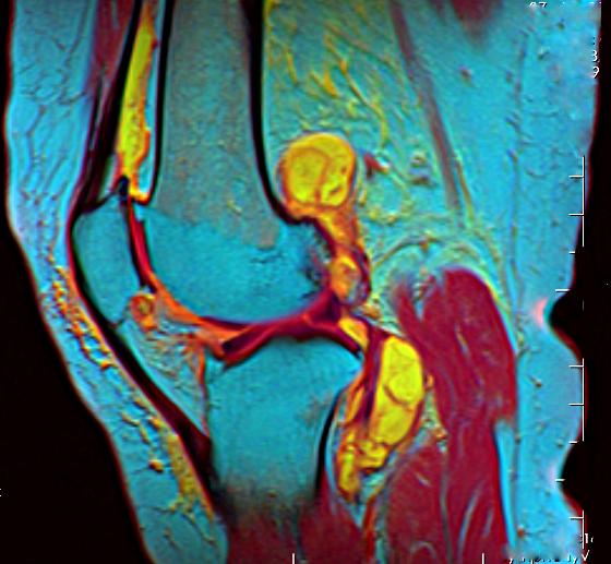 Knee MRI 113035 rgbcb