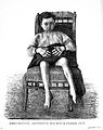Lane, Differentiation..., 1892; boy suffering from arthritis Wellcome L0020767.jpg