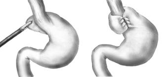 Nissen fundoplication - Image: Nissen fundoplication