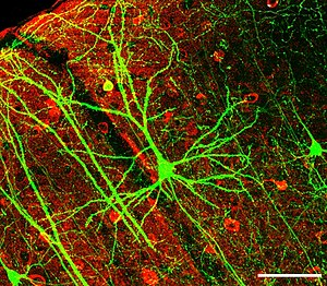 Brain - Neurons often have extensive networks of dendrites, which receive synaptic connections. Shown is a pyramidal neuron from the hippocampus, stained for green fluorescent protein.
