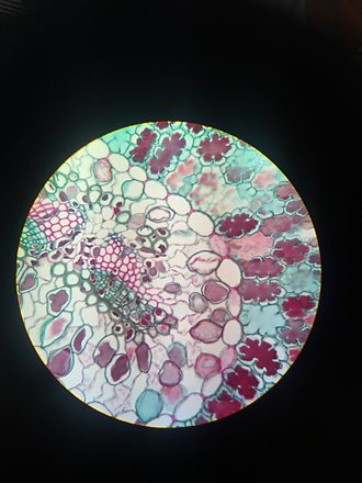 Vascular bundle - The vascular bundle of pine leaf showing xylem and phloem
