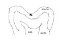 Pitandfissurecaries02.PNG