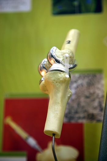 Model demonstrating parts of an artificial knee