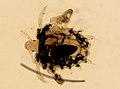 Pthirus pubis (YPM IZ 093635).jpeg