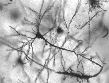 Neuroni dell'ippocampo umano.
