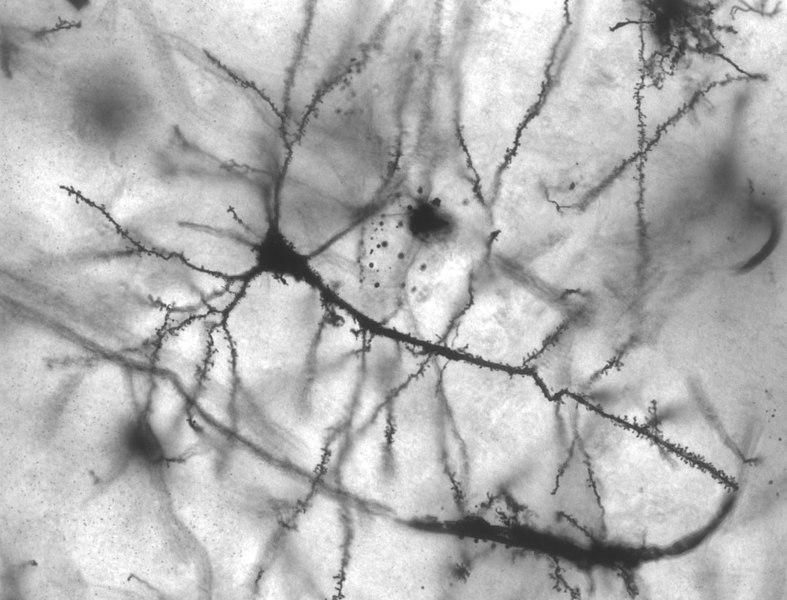 Neurone pyramidal de l'hippocampe - (c) Wikipedia