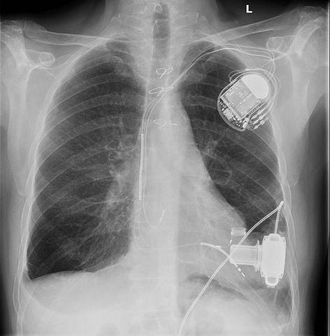 Röntgenbild nach Kunstherzimplantation