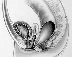 Rectovestibular fistula in females.jpg