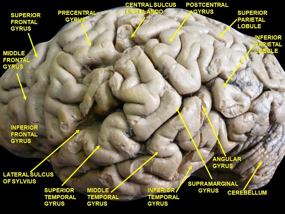 Inferior Frontal Gyrus Howling Pixel