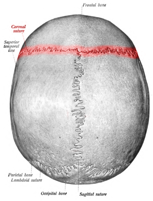"Coronal suture - Superior view of the skull. (""Coronal suture"" in red.)"