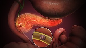 3D Medical Animation still shot of Acute Pancreatitis
